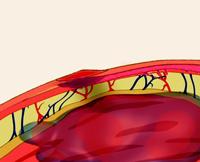 Как избежать осложнений после инъеций - Какие бывают осложнения после укола - Укол шишка синяк постинъекционный абсцесс нагноение воспаление покраснение после укола. Какие бывают осложнения после укола?