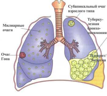Рифампин (Рифадин), этамбутол (Миамбутол) и пиразинамид - препараты, часто используемые при лечении туберкулеза.